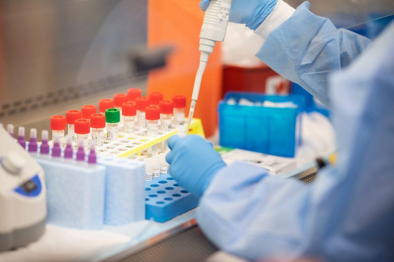 U svetu od korona virusa umrlo 1.275.113 ljudi